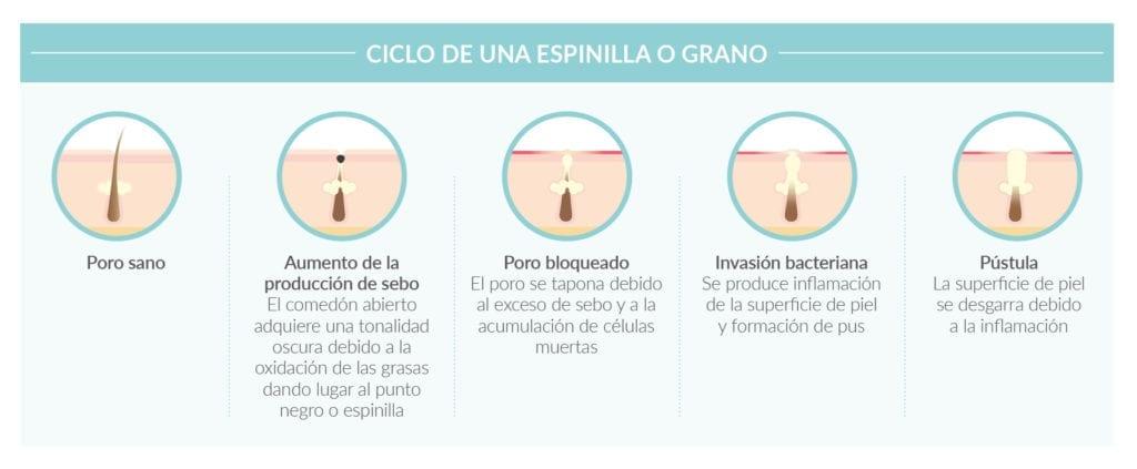ciclo espinilla o grano. Rutina para piel grasa en 3 pasos